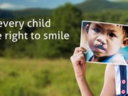 Free cleft lip, palate surgeries for ethnic minority children