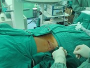 HCM City surgeons remove giant kidney stone
