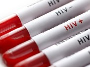 Vietnam keeps rate of new HIV cases lower 0.3 percent