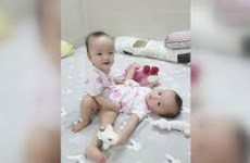 HCM City doctors separate conjoined twins