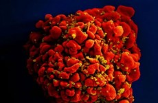 Philippines records fastest-growing HIV infection in Asia-Pacific