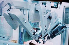 Cho Ray becomes third hospital to apply robotic cancer surgery