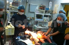 Conjoined twins successfully separated in Hanoi