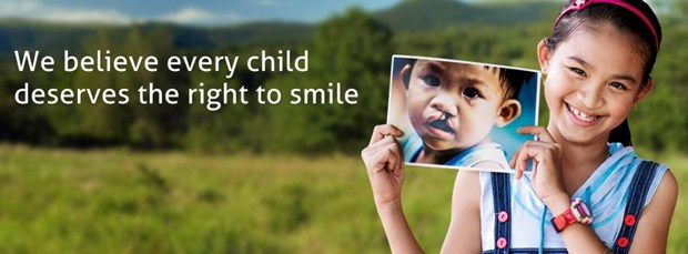 Free cleft lip, palate surgeries for ethnic minority children hinh anh 1