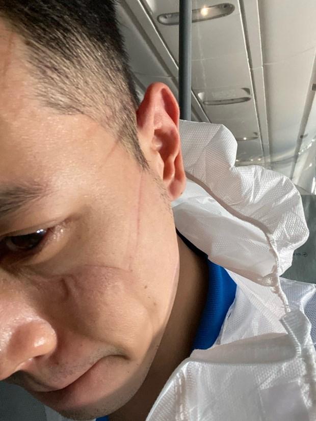 Flight attendant talks about Vietnam Airlines' repatriation flight from Equatorial Guinea hinh anh 2