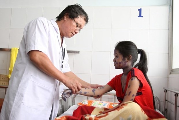 Southern region sees more chickenpox cases hinh anh 1