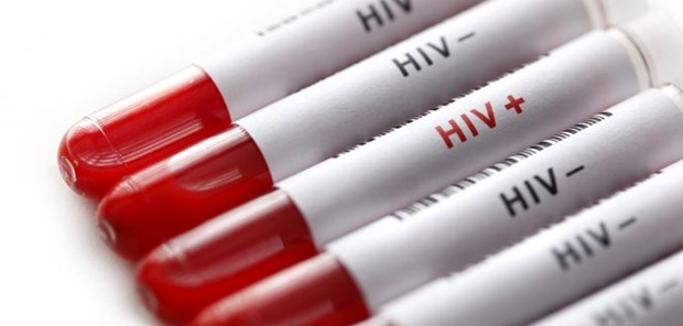 Vietnam keeps rate of new HIV cases lower 0.3 percent hinh anh 1