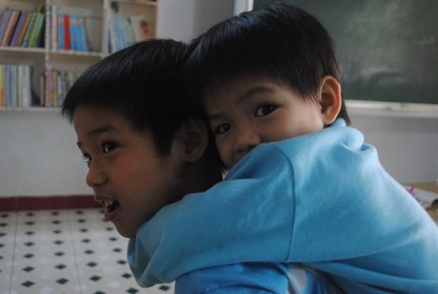 Da Nang: Children get free eye surgeries hinh anh 1