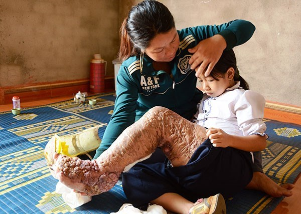 US institute lauds Vietnam's elimination of lymphatic filariasis hinh anh 1