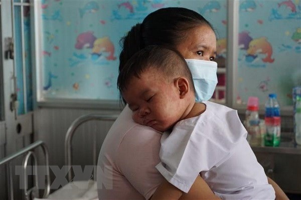 Measles reported in 43 provinces and cities nationwide hinh anh 1