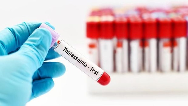 Indonesia concerned over rising thalassemia cases hinh anh 1