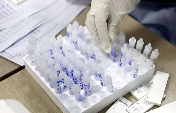 Vietnam adds 30 cases to domestic COVID-19 tally on May 19 hinh anh 1